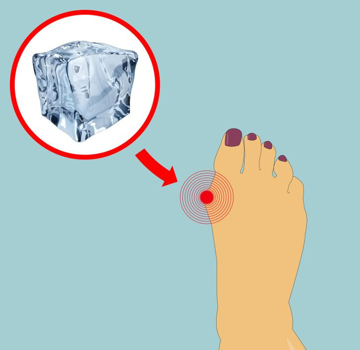 6Easy Ways toShrink Your Bunions Without Surgery