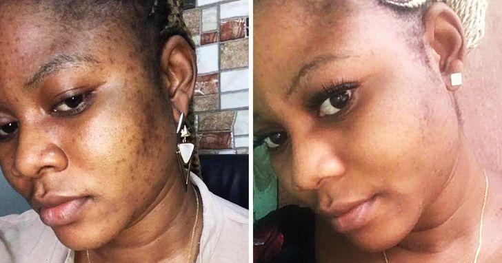 remove dark spots on face