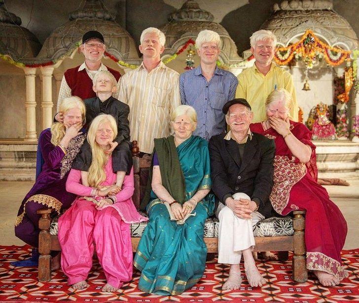 Keluarga India albino.