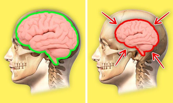 Yeterince Uyumazsak Vücudumuzda Oluşacak 7 Durum www.dergikafasi.com