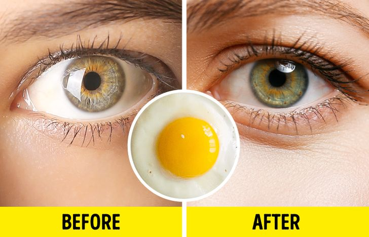 7 Foods That Will Help You Grow Long Eyelashes