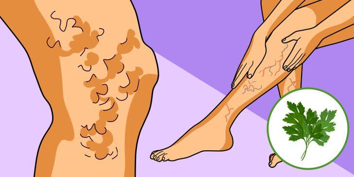 Varice pe picioare și ciclism - Venele mărite la picioare