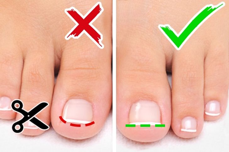 how to take care of your toenails