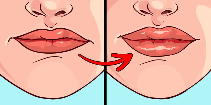 8 Things Your Lips Are Trying to Tell You About Your Health