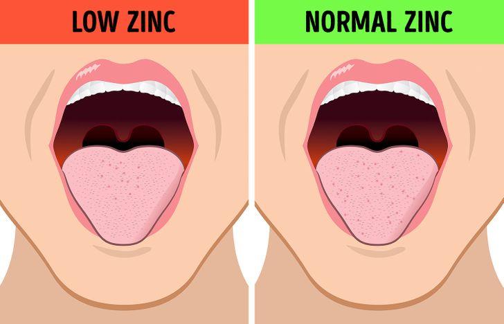 b90cd95311927f6ec025e6d492 - How To Get Throw Up Taste Out Of Mouth