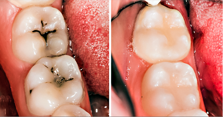 8Simple Ways toNaturally Reverse Cavities and Heal Tooth Decay