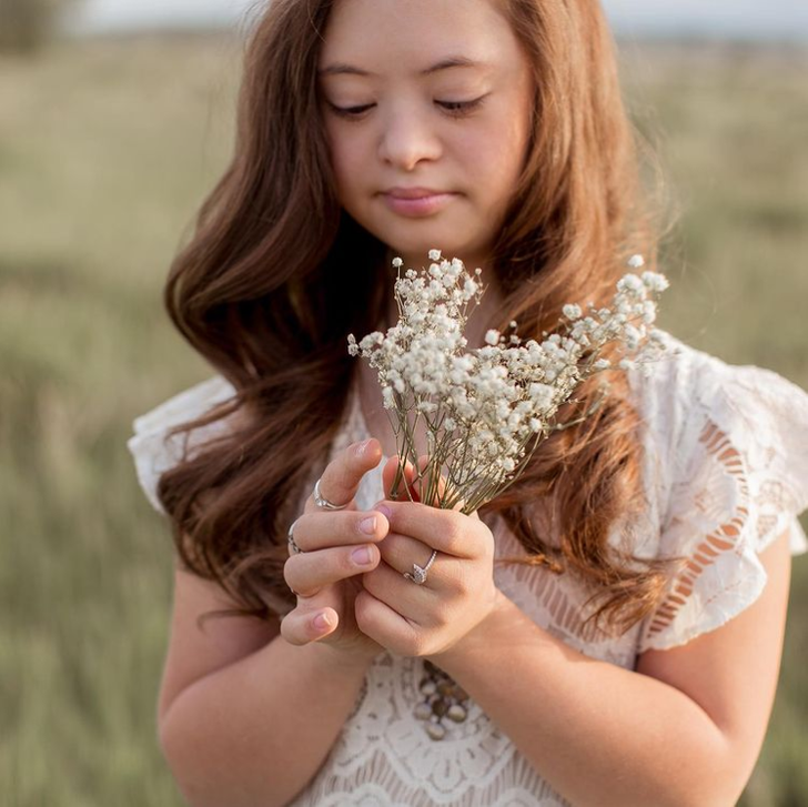 A Girl With Down Syndrome Beats Doctor's Odds and Grows Into a Stunningly Beautiful Model